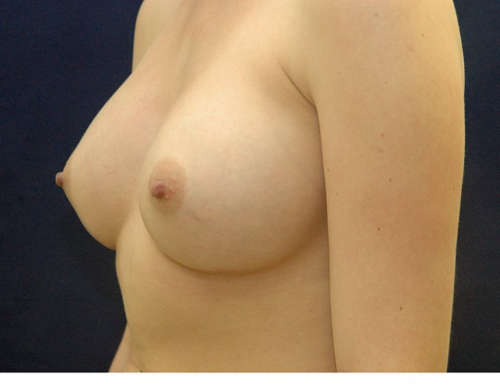 after, breast augmentation
