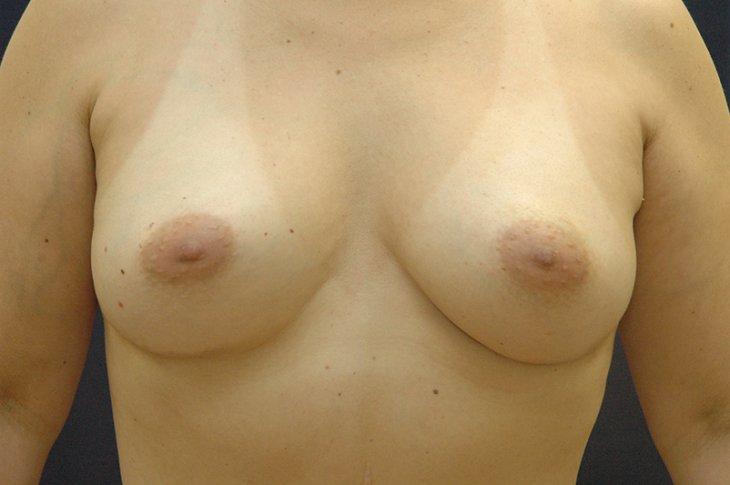 Implant north carolina breast